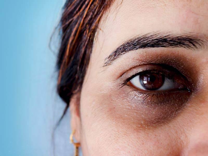 Tips to get rid of under eye dark circles