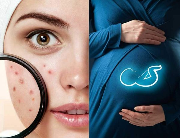 What are the causes of pimples during pregnancy and how to treat them