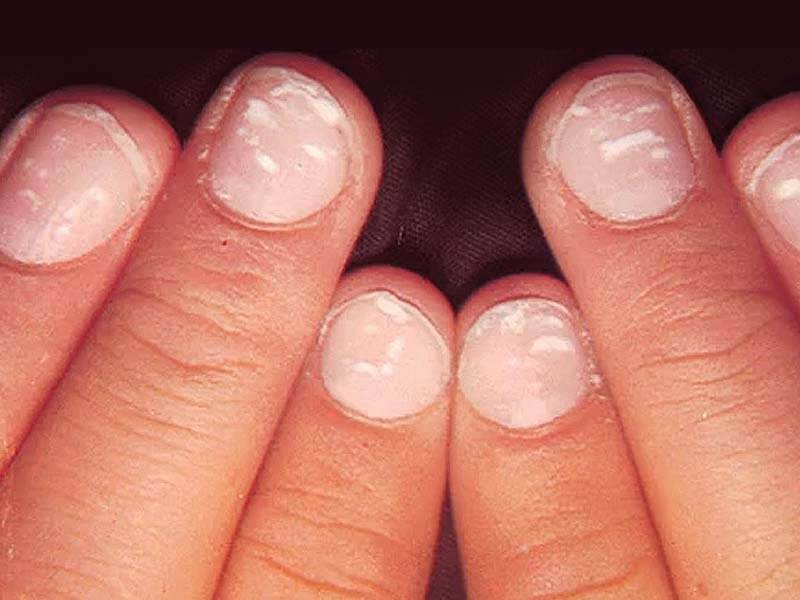 How can you get rid of white spots on nails at home