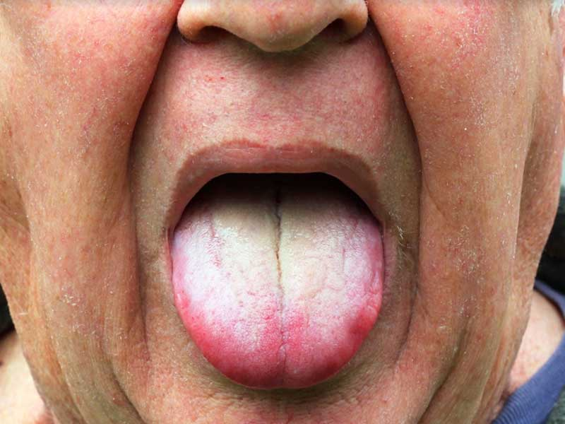 How to get rid of white coated tongue with simple home remedies