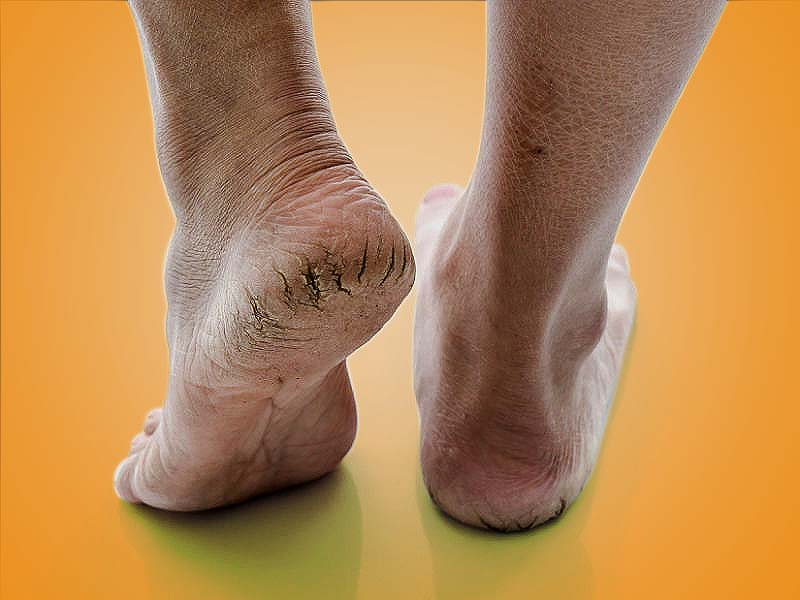 Some effective home remedies to treat cracked heels
