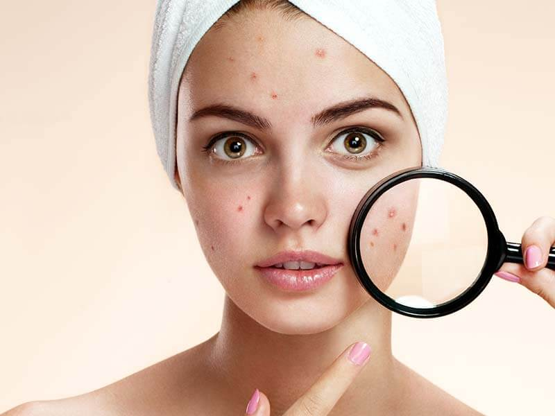 how to use hydrogen peroxide to remove acne