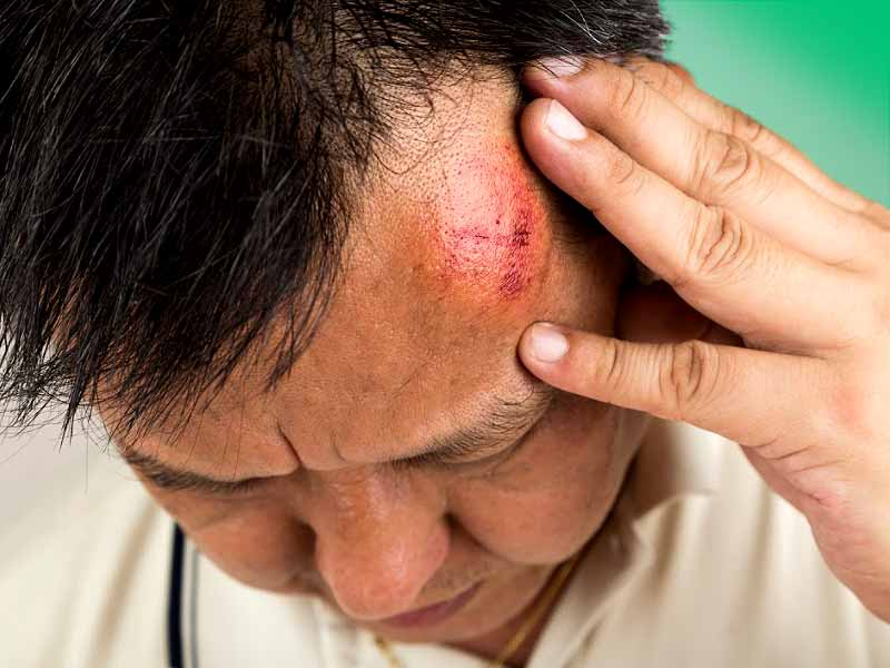 How To Treat Head Swelling At Home