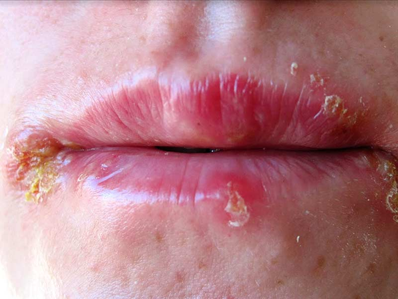 What Are The Natural Remedies For Herpes