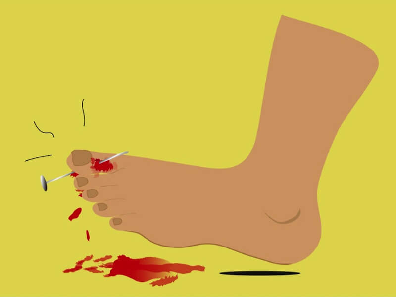 How to stop bleeding quickly in just 10 seconds