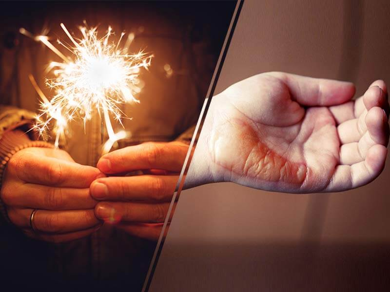 Diwali 2017: Do's and don'ts in case of hand burn while bursting crackers
