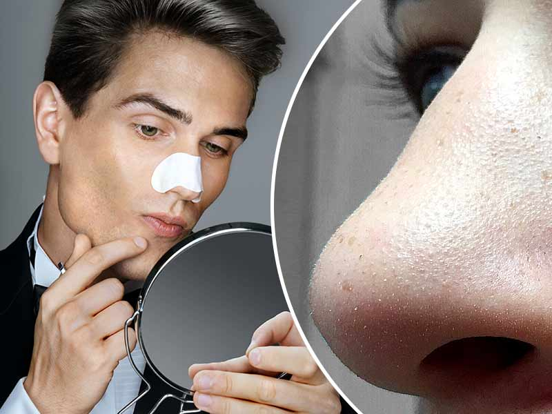 How Men Can Remove Blackheads From Their face