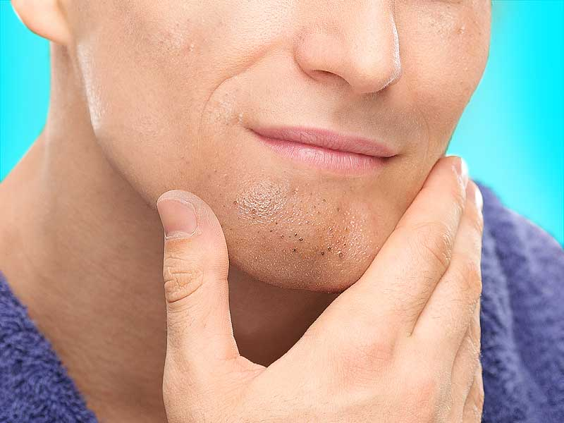What are the ways one can get rid of the blackheads from chin
