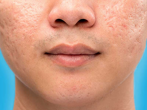 how to get rid of big pores naturally