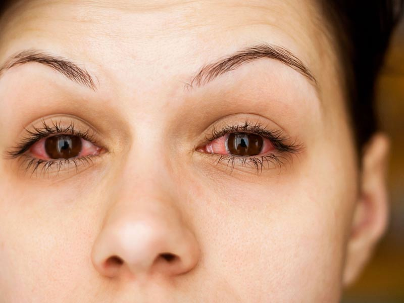 What are the probable reasons that leads to redness of eyes