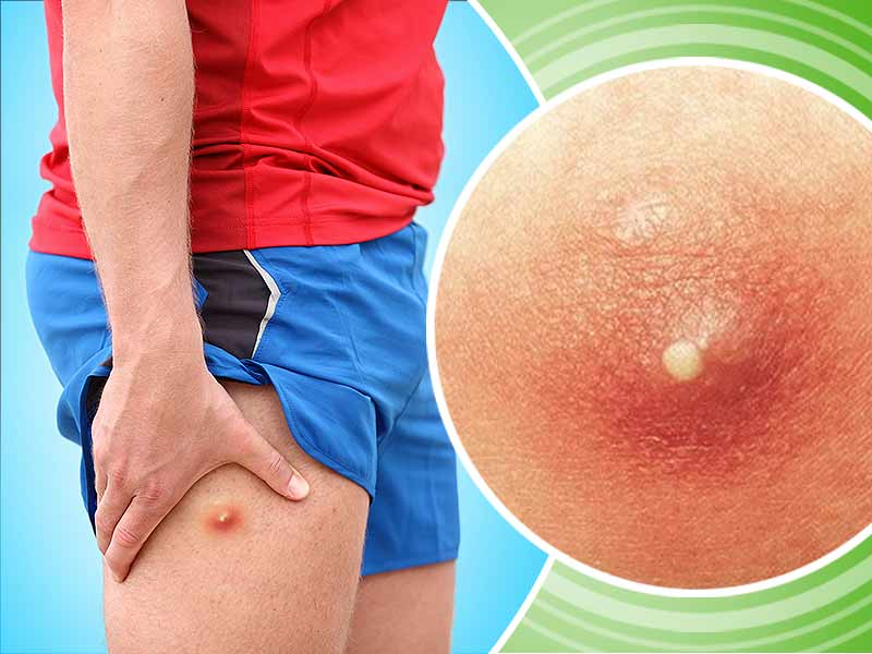 What are the effective home remedies to get rid of boils on bums and