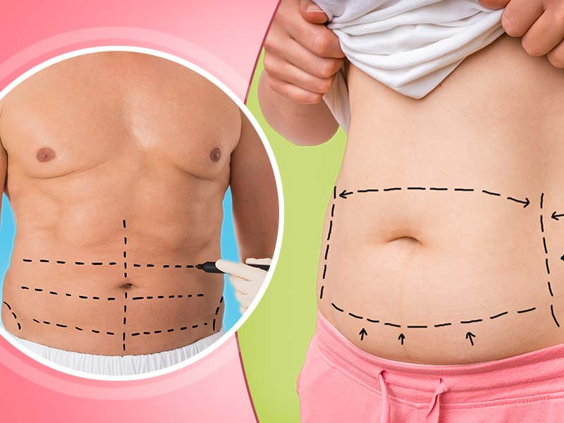 What Are The Things You Should Know About Tummy Tuck For Weight Loss