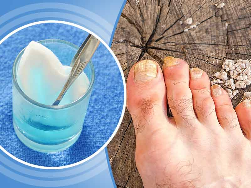 How to use hydrogen peroxide for nails fungus - lifealth