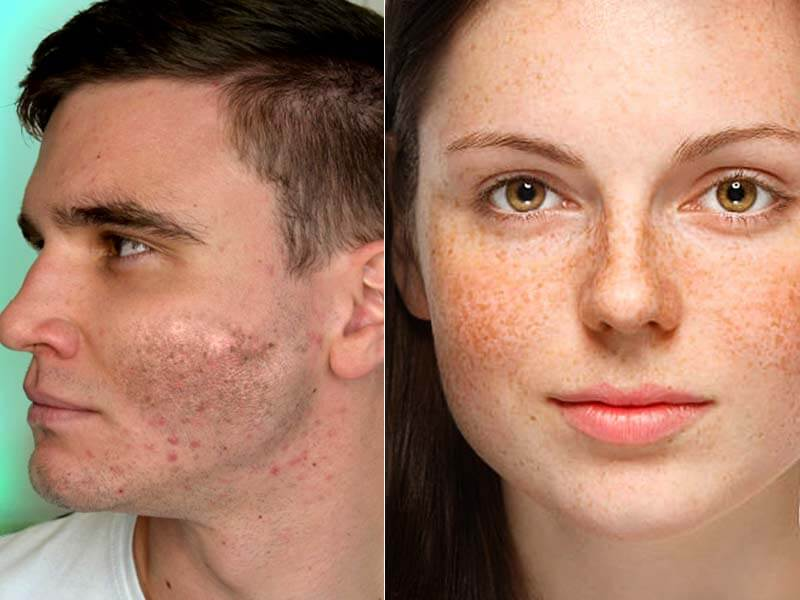 How to Get Rid of Hyperpigmentation at home