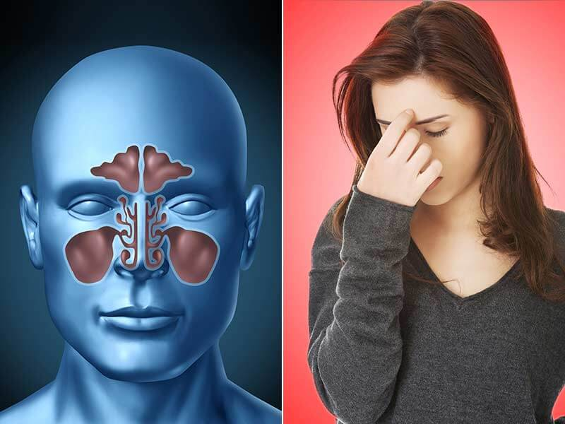 Facts One Must Know About Sinus Infection