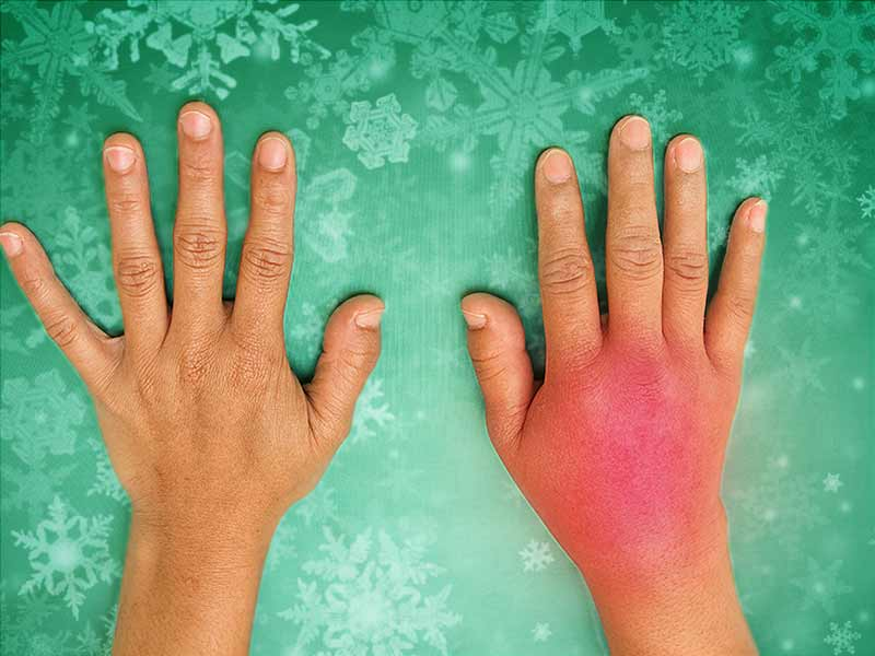 home remedies to cure swelling in winters