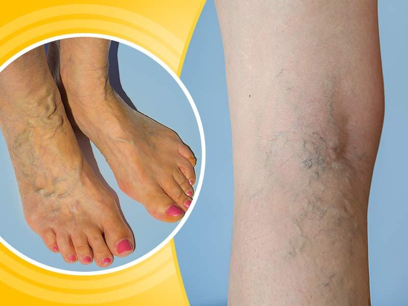 What Are The Effective Home Remedies of Varicose Veins