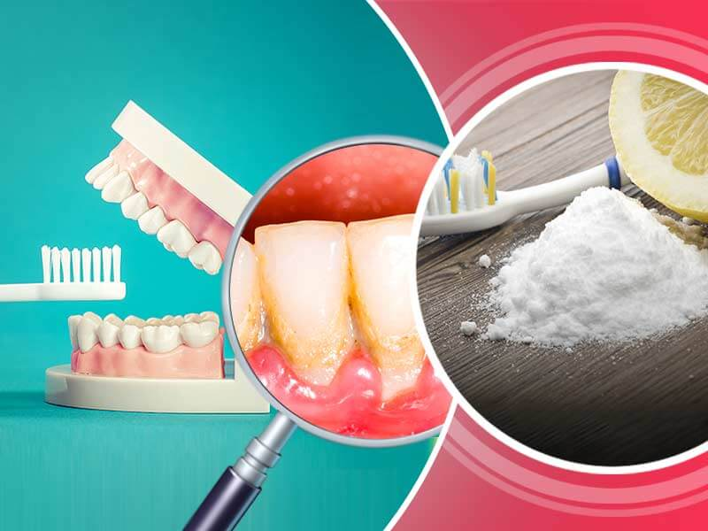 How to get rid of dental plaque at home naturally