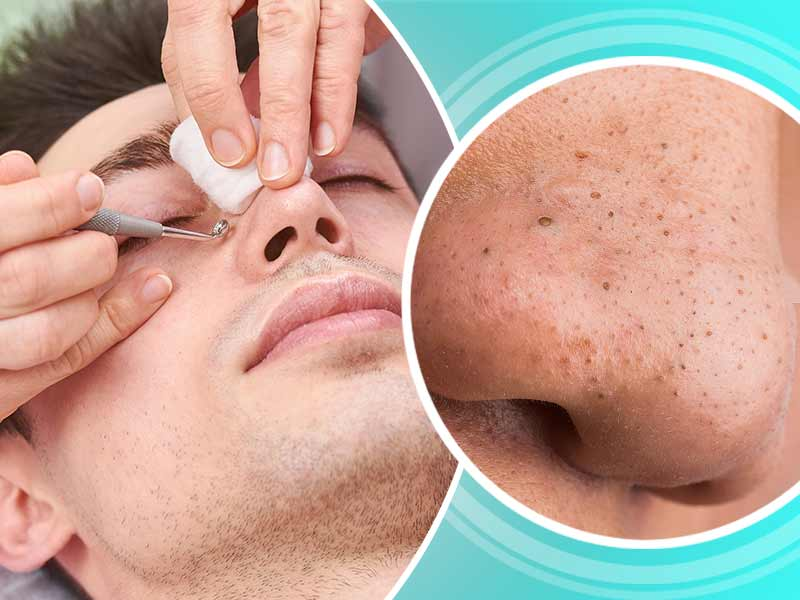 How to prevent your skin from getting blackheads
