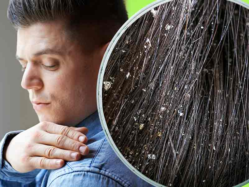 how to get rid of dandruff naturally with oils