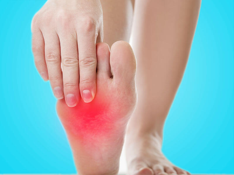 How to get rid of the burning sensation in the feet naturally