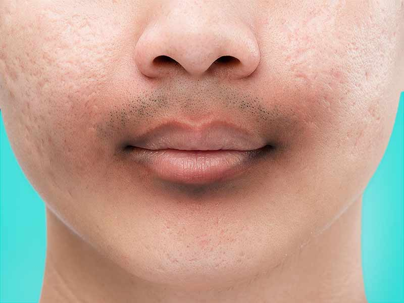 home remedies to get rid of dark skin around lips and chin