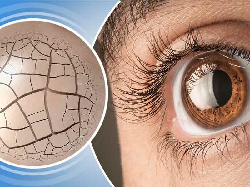 dry eyes, dryness of eyes, what causes dryness of eyes, home remedies for dry eyes, how to get rid of dry eyes