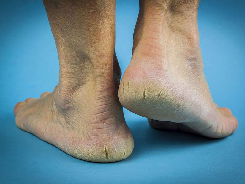 How to remove dead skin cells from the feet naturally