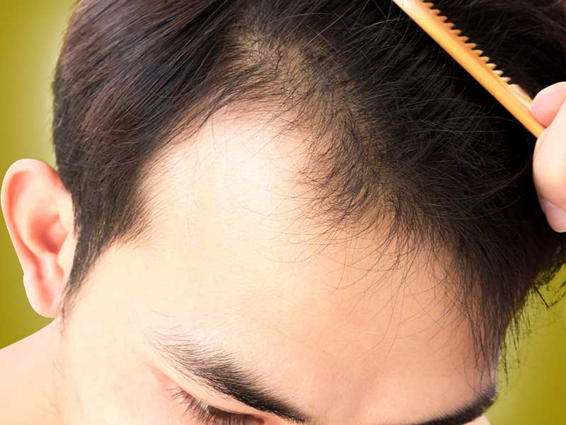 How to fight the problem of frontal baldness
