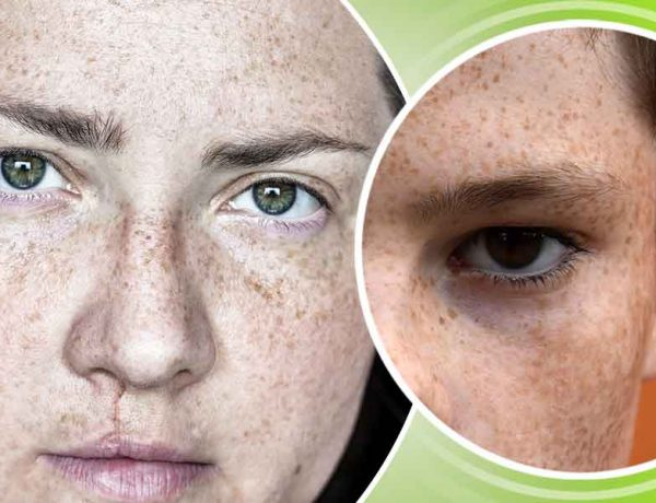 How to get rid of the freckles at home naturally