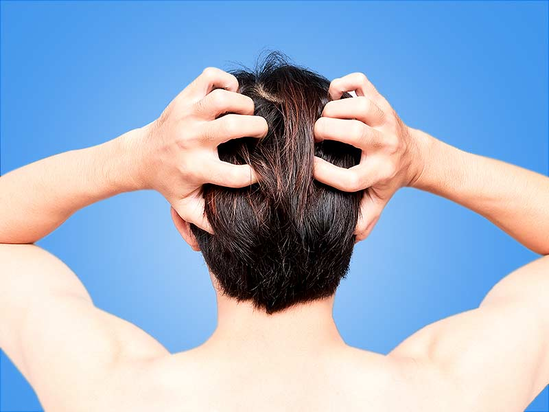 Amazing home remedies to get rid of the fungus in hair