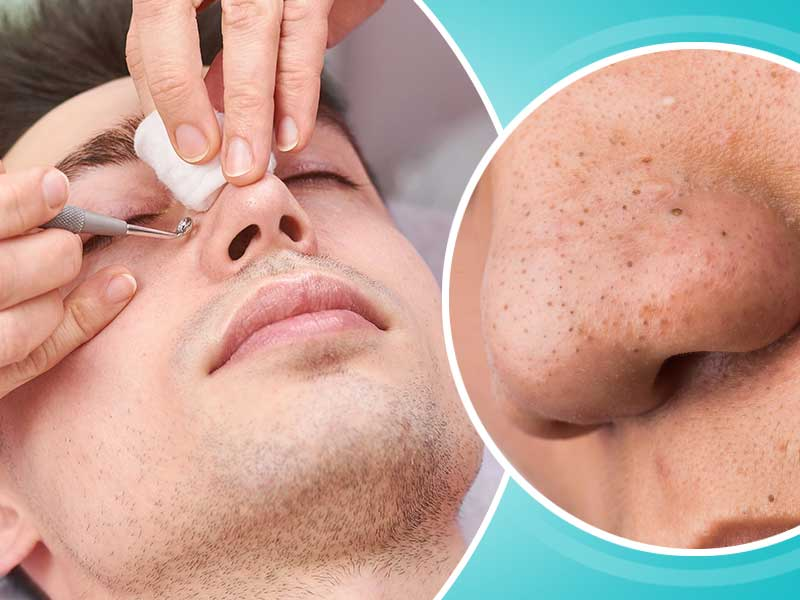 homemade scrub for blackhead remover