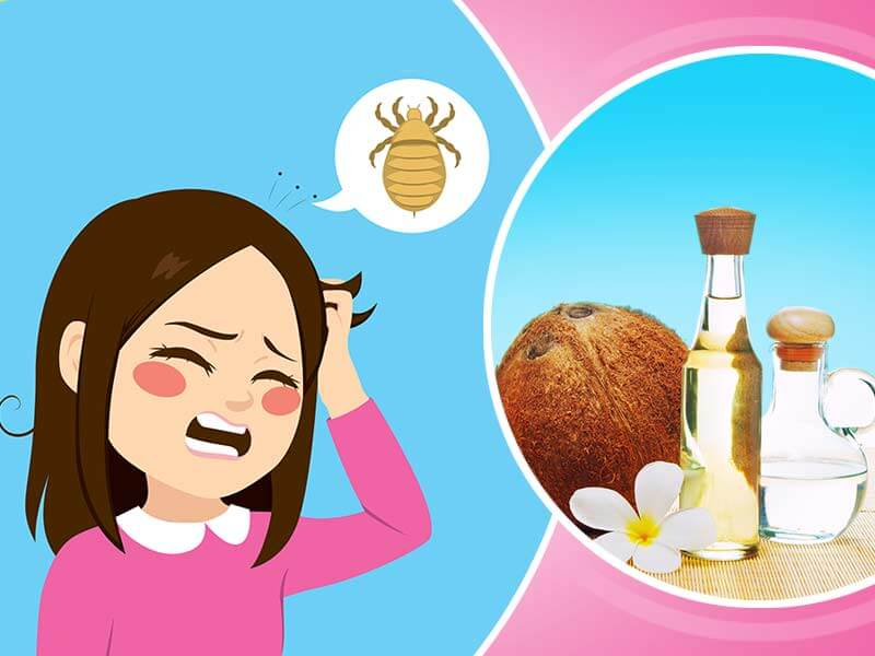 coconut oil to get rid of the hair lice