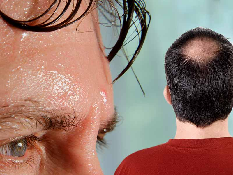 Why does our hair fall when we sweat excessively