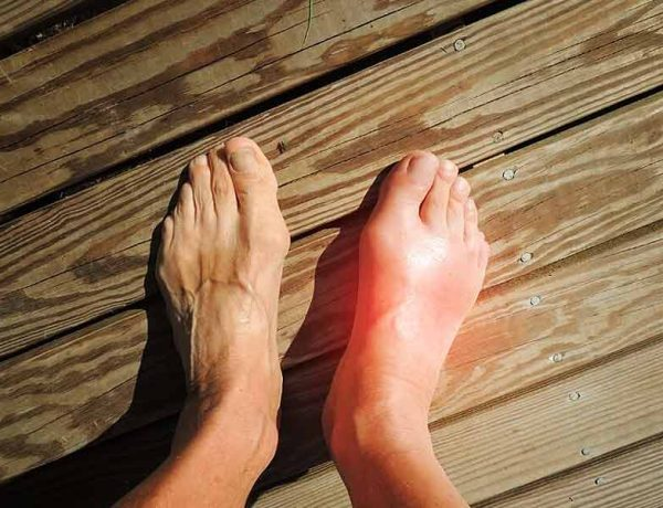 What Are The Home Remedies Can Reduce Swollen Feet