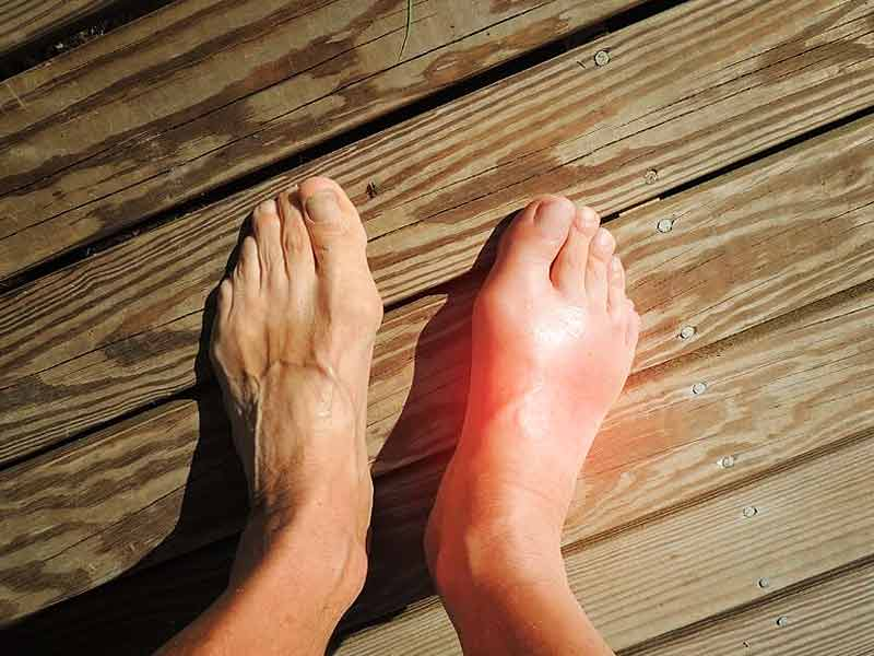 home-remedies-for-swollen-feet-