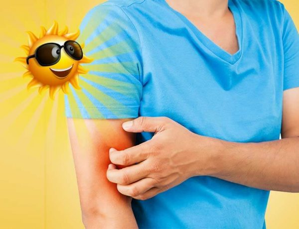 Effective home remedies to get rid of itching during summers