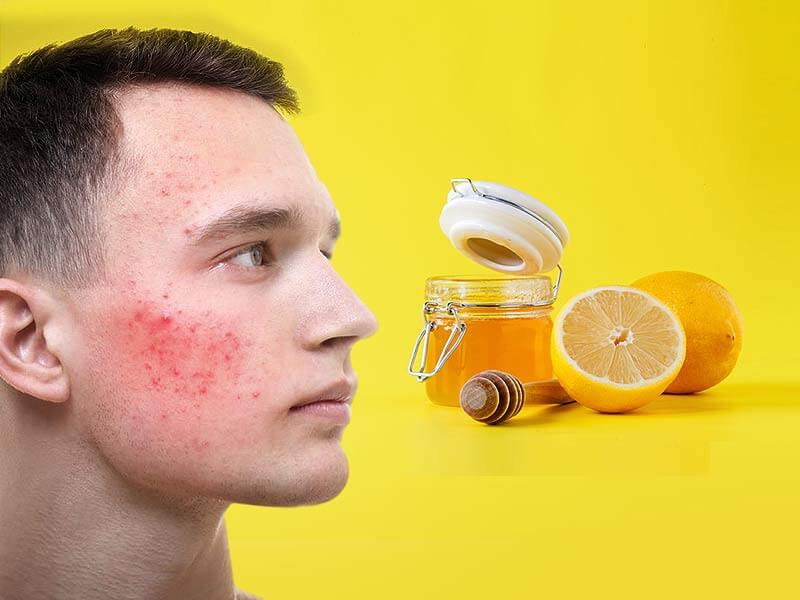 Honey and lemon helps to have flawless skin.