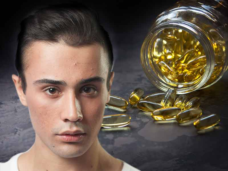 How to get rid of dark spots and acne marks using vitamin E
