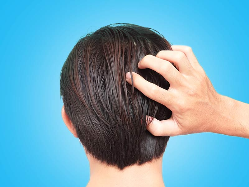 What are the effective home remedies to get rid of scalp build up easily