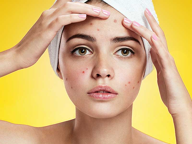 Ways to get rid of pimples from oily skin
