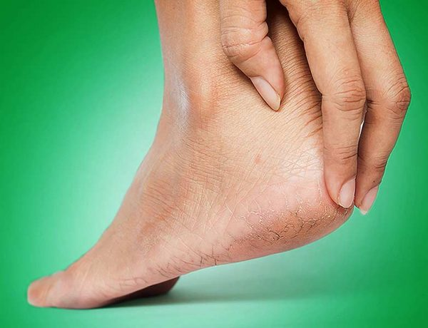 Remedies to treat skin peeling on the feet
