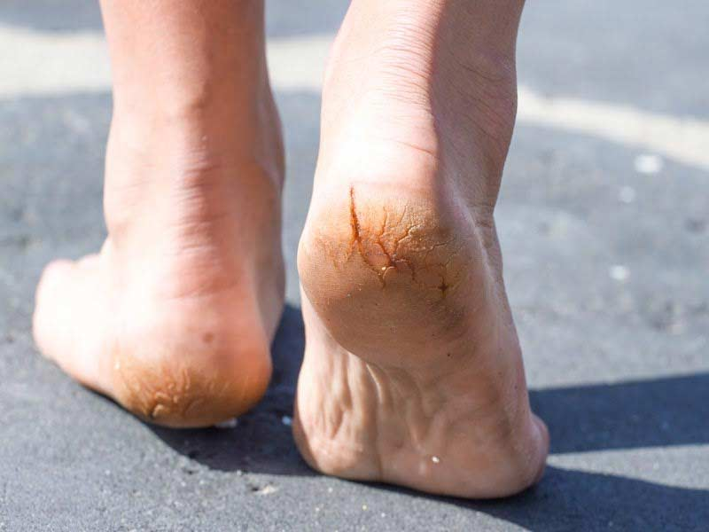 Reasons You Have Peeling Or Cracked Feet