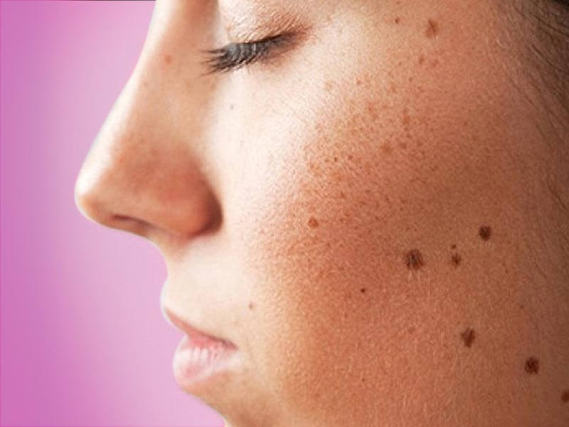How to get rid of different spots on the face