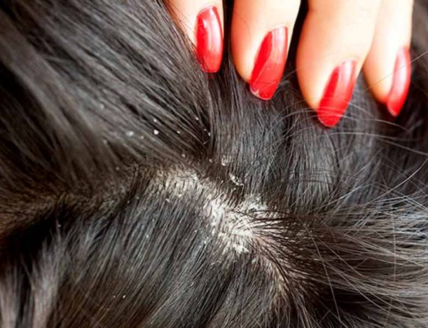Effective home remedies for a dry scalp
