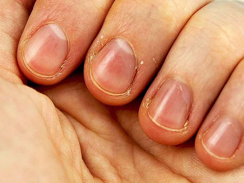 Tips for Treating Hangnails