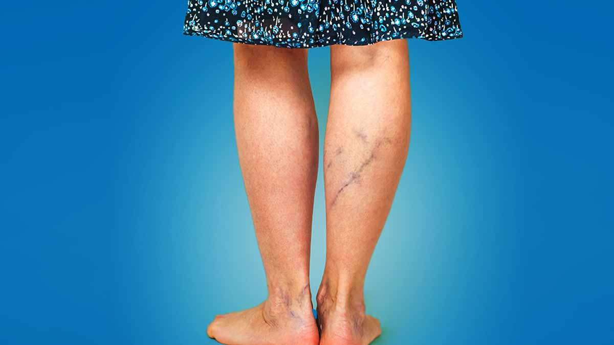 Get rid of spider veins with home remedies