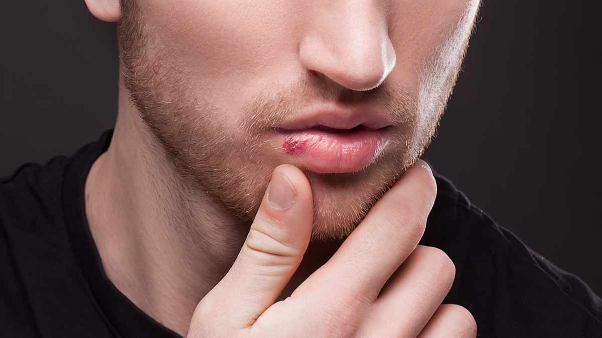 Remedies for cold sore: How to reduce the problem of
