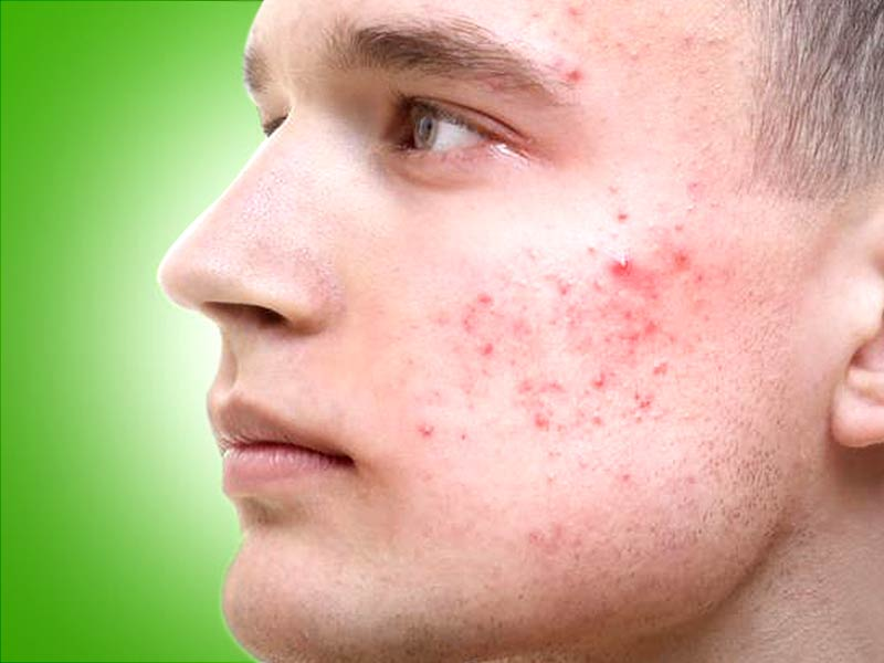 Tips to deal pimples under skin