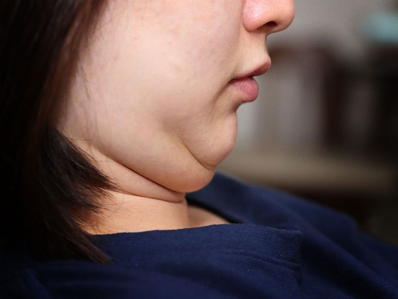 Tricks to hide double chin